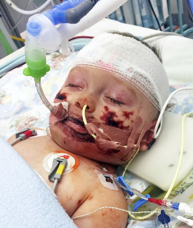 DRAMATISK: Hjernehinnebetennelsen gjorde at organene til den åtte måneder gamle babyen sluttet å fungere. Foto: NTB scanpix