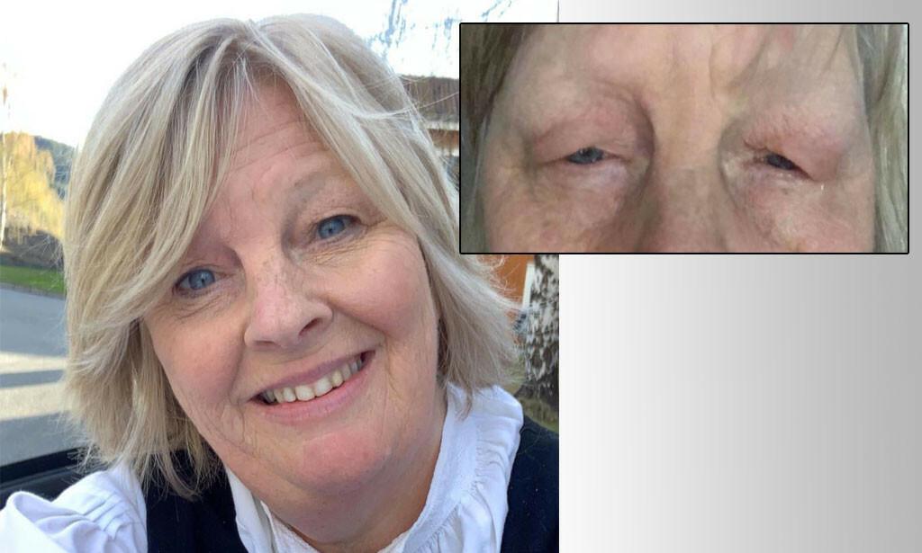 Jorunn (53) har kuldeallergi. Bildet til høyre viser hvordan hennes øyne hovner opp når hun har vært ute i kulden. Foto: PrivatS
