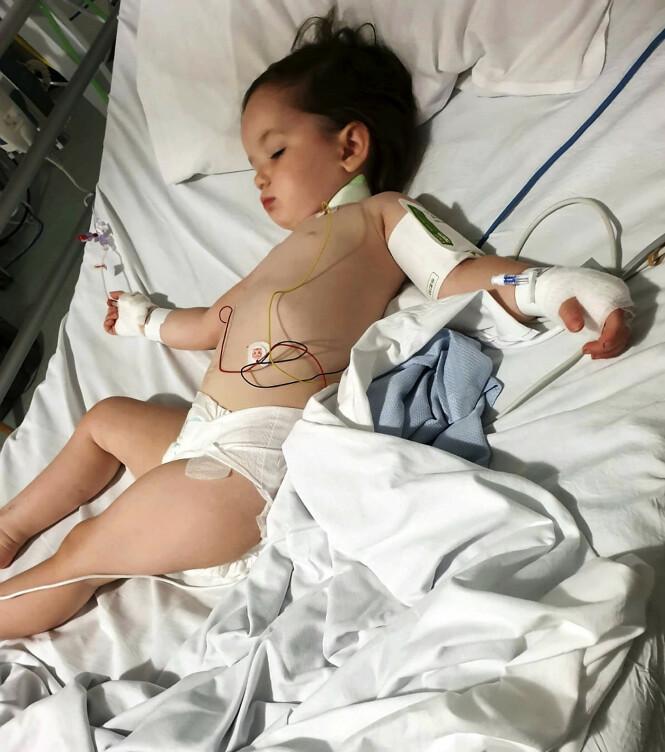 UTSLÅTT: Her er Elsie-Rose rett etter operasjonen. Hun lå på intensivavdelingen i fem døgn. Foto: NTB Scanpix