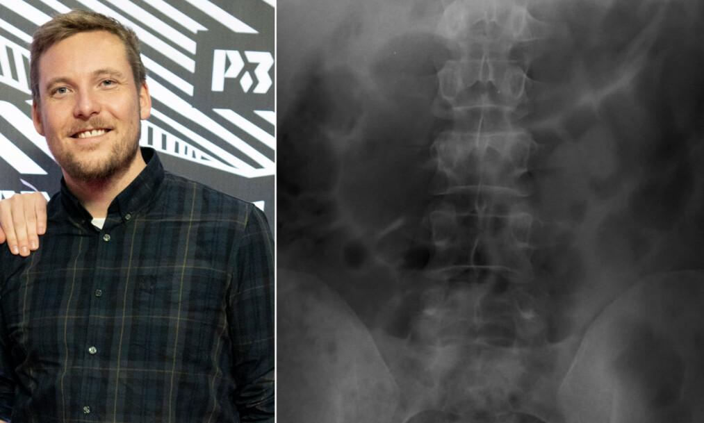 SKADET: Niklas Baarli skadet seg stygt på en ferietur, der han har brukket ryggen to steder. Her har han lagt ut et røntgenbilde. Foto: NTB Scanpix / Skjermdump Instagram
