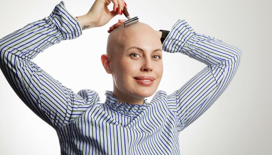 FJERNER TUSTENE: Sykdommen Alopecia Areata gjør Julia Viita hårløs. Hårtuster som flekkvis dukker opp fjerner hun regelmessig med barberhøvelen. Foto: Svend Aage Madsen/ Se og Hør