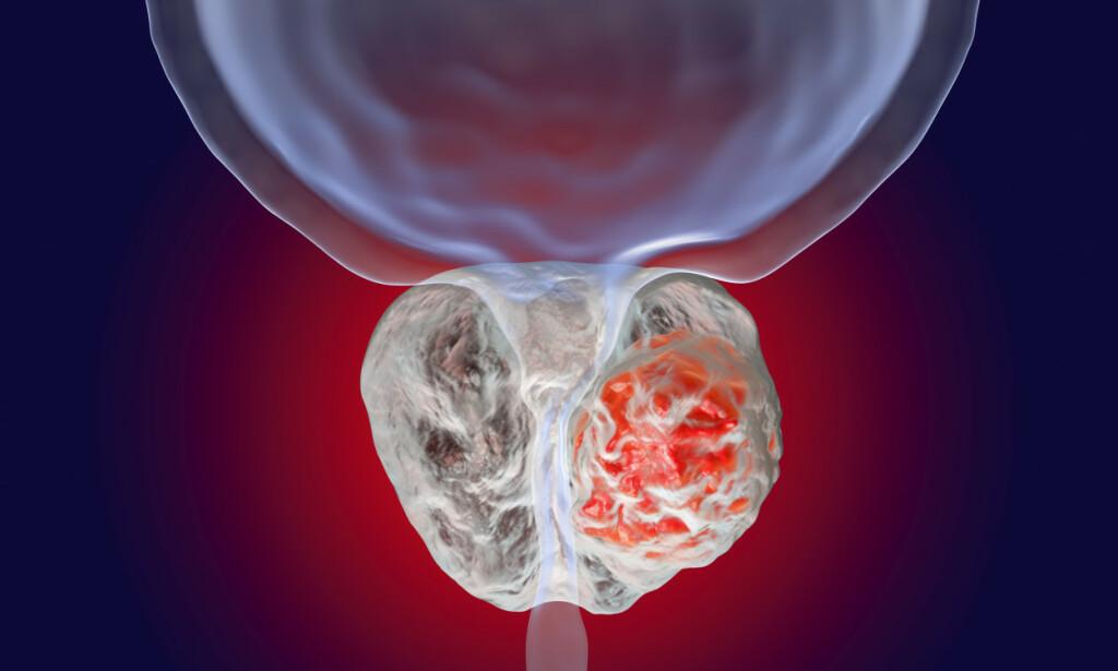 KREFT I PROSTATA: Prostatakjertelen er en valnøttformet kjertel som ligger under blæren og produserer en tyntflytende væske som transporterer og hjelper sædceller. På illustrasjonen ser man en svulst i prostata. Illustrasjon: NTB Scanpix/Shutterstock