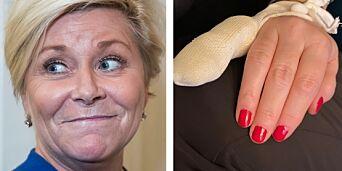 image: Mistet en del av fingeren