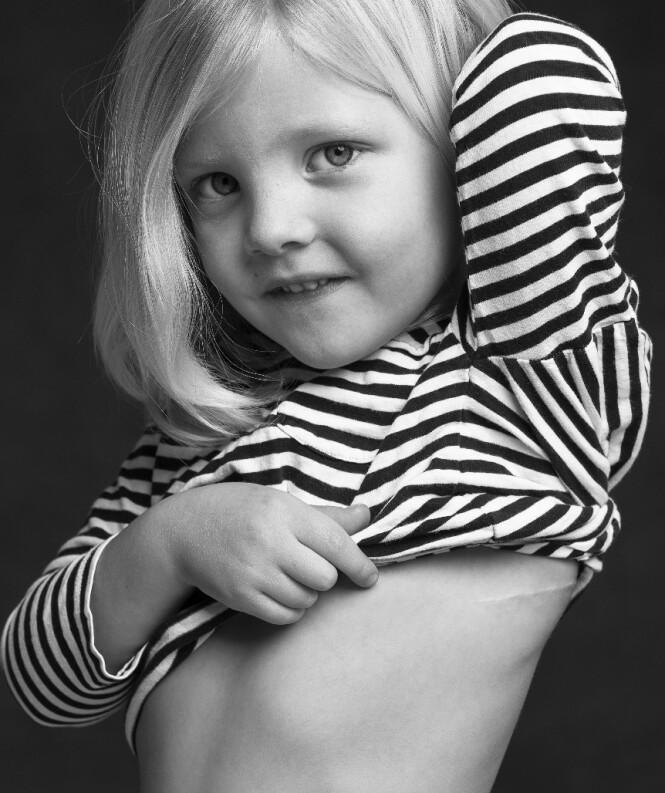 STOLT: Se på det flotte arret mitt! Foto: Leonard Gren/Hjärt-Lungfonden