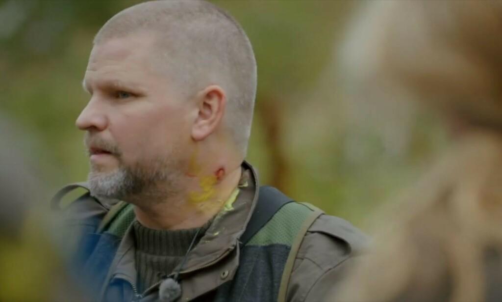 FIKK SÅR: Paintballkula gikk gjennom hudet til Håvard Lilleheie og etterlot seg et sår. Foto: TV 2