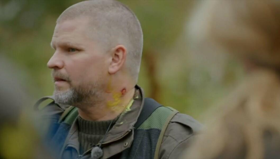 <strong>FIKK SÅR:</strong> Paintballkula gikk gjennom hudet til Håvard Lilleheie og etterlot seg et sår. Foto: TV 2