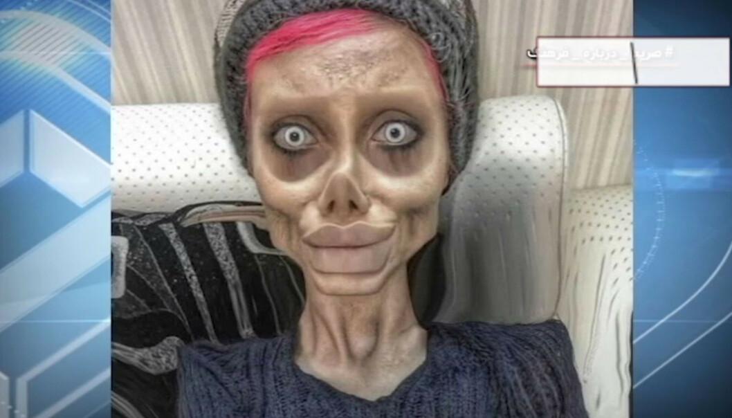 <strong>CORONASMITTET:</strong> Sahar Tabar, hvis egentlige navn er Fatemeh Khishvand, er blitt smittet av coronaviruset i fengsel, og ligger på sykehus, sier menneskerettighetsadvokat. Foto: Skjermdump fra iranske IRIB, NTB Scanpix