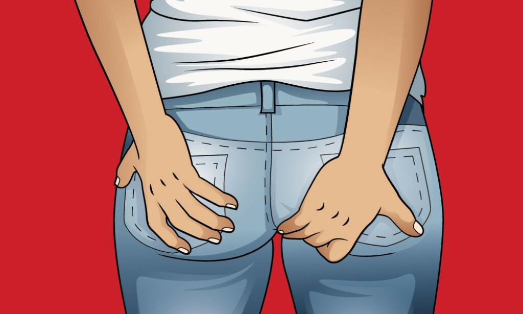 DET KLØR: Hemoroider kan gi kløe i endetarmen. Det kan også gjøre litt vondt. Illustrasjon: NTB Scanpix/Shutterstock