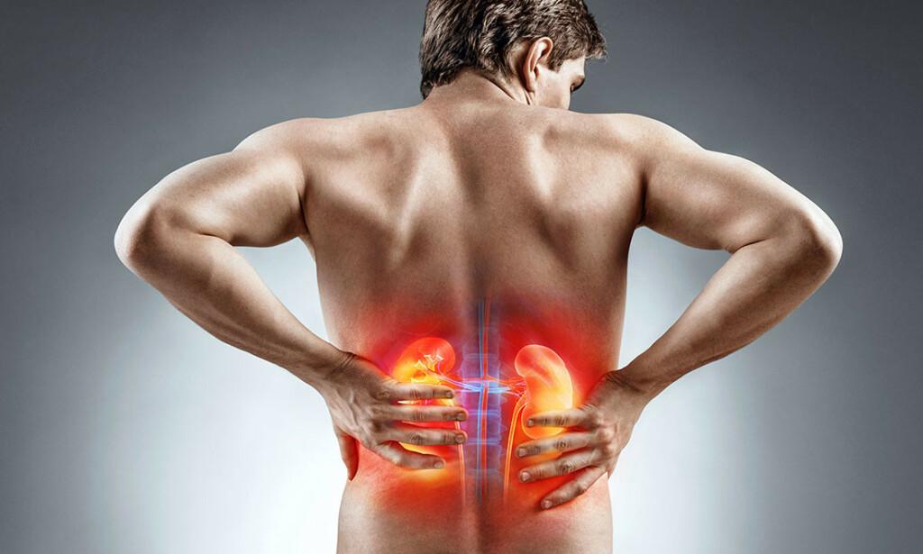 SMERTER I SIDEN: Ved nyrestein har man smerter på den ene siden av kroppen, der nyrene sitter. Foto: NTB Scanpix.