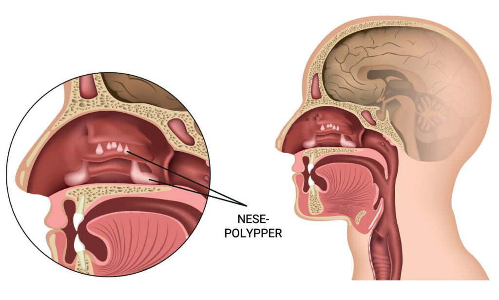 TETT NESE: Nesepolypper kan føre til kronisk tett nese. Illustrasjon: NTB Scanpix/Shutterstock