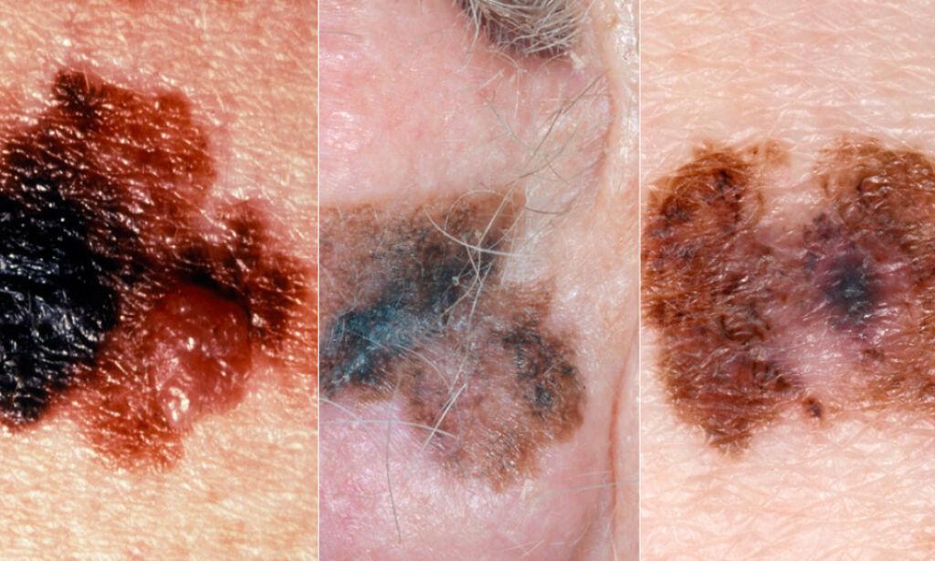 ONDARTET FØFLEKK: Tre eksempler på malign melanoma - dette er føflekkreft. Foto: NTB Scanpix / Science Photo Library