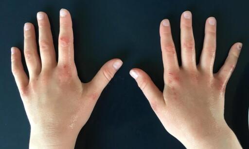 For hyppig håndvask kan resultere i såre hender og eksem. Foto: Privat