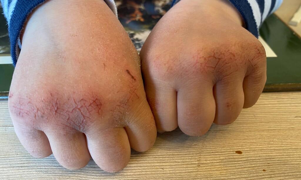 VASKET TIL BLODS: Slik så hendene til Herman (4) ut etter en uke med økt fokus på håndvask i barnehagen. <br>- Når barna kommer hjem fra skole og barnehage med slike hender og gråter av smerte, så minner jeg om at huden vår er en av kroppens viktigste barrierer mot infeksjon, sier mamma Susanne Devor. Foto: Privat