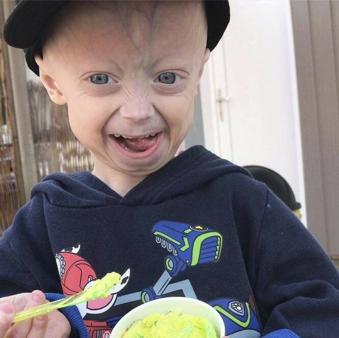 SJELDENT SYNDROM: Fem år gamle Luke har et sjeldent syndrom. Foto: Media Drum World