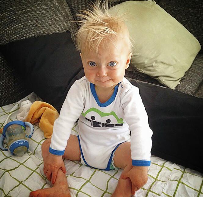 MISTET HÅRET: Luke hadde hår da han var yngre – men mistet det fordi kroppen hans eldes i rekordfart. Foto: Media Drum World