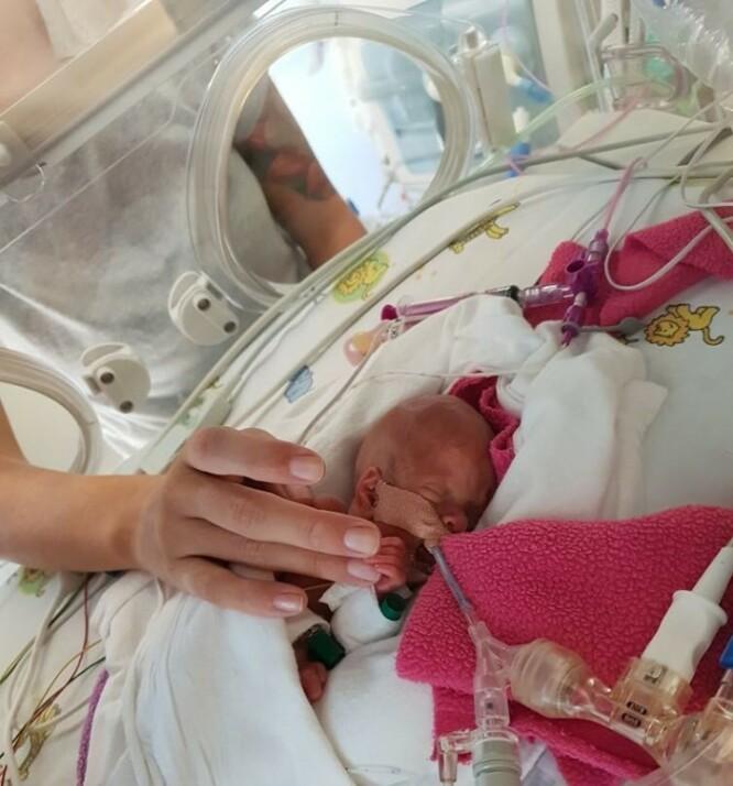 <strong>HELEN:</strong> Lille Helén inne i kuvøsen sin. Det var sårt for foreldrene å se henne slik. FOTO: Privat