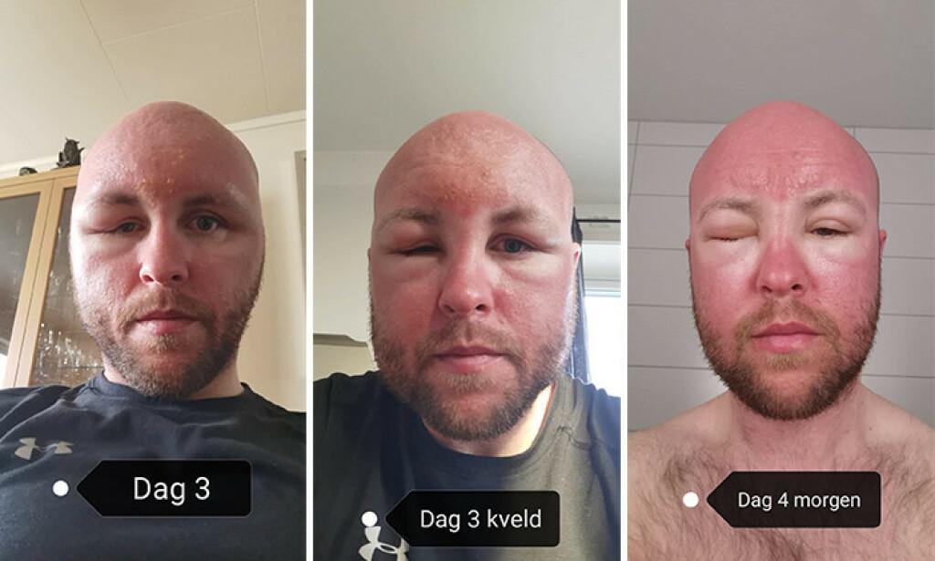 BRUK SOLKREM: Lars Aunemo (35) ber folk ta på seg solkrem, etter at han endte opp med blemmer og hevelse. Foto: Privat
