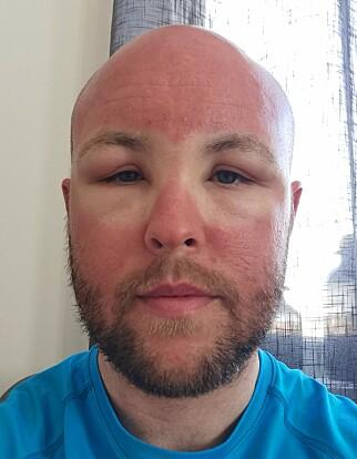 BRILLESKILLE: Ansiktet hadde fått andregradsforbrenning der hvor slalåmbrillene ikke hadde vært. Foto: Privat