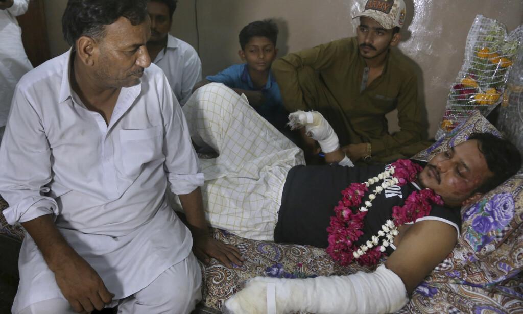 OVERLEVDE: Den 24 år gamle ingeniøren Mohammad Zubair overlevde flystyrten. Foto: AP Photo / Fareed Khan / NTB scanpix