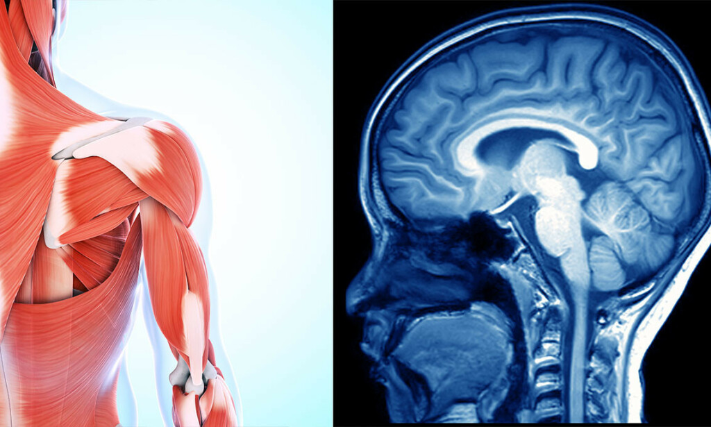 MUSKLER OG HJERNE: Tap av muskelmasse og redusert hukommelse er to vanlige alderstegn. Foto: NTB Scanpix/Shutterstock.