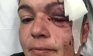 SKUTT: Linda Tirado la ut bilde av seg selv fra sykehussenga etter at hun ble skutt av politiet. Foto: Twitter