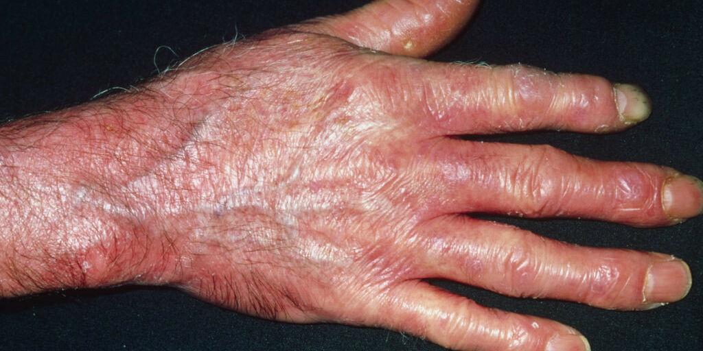 image: Dette er sklerodermi