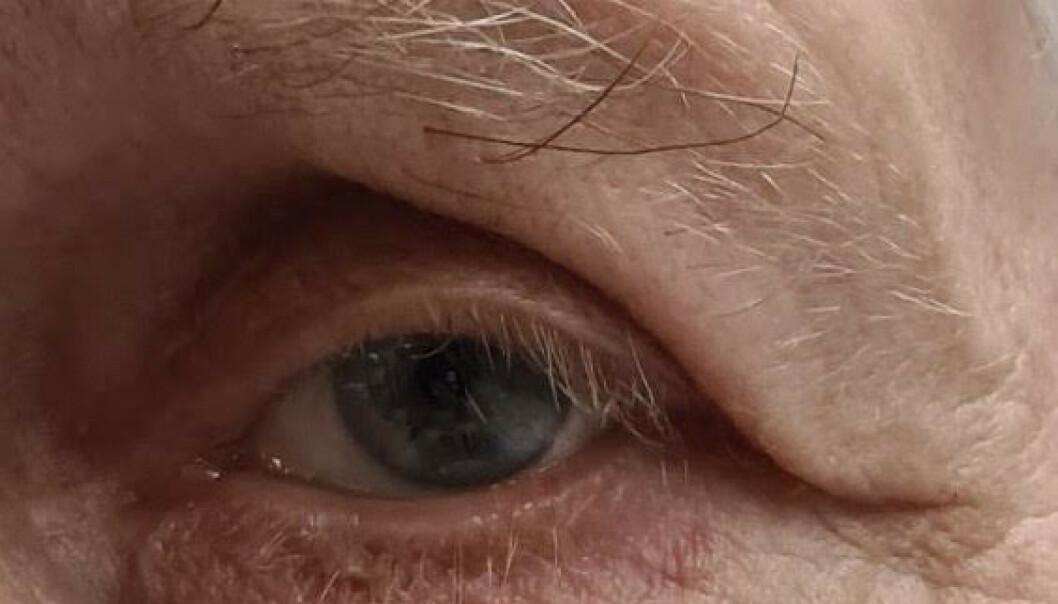 PLAGE: Tunge øyelokk kan gjøre det vanskelig å se. Mannen Vi.no har snakket med opererte øyelokkene for ti år siden. Øyelokkene har seget litt igjen siden da, men: - Grunnet operasjonen har jeg ikke fått de plagene jeg kunne ha fått, sier han. Foto: Privat