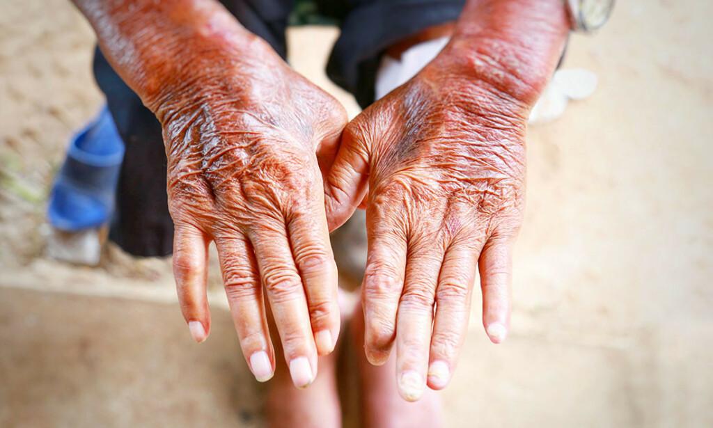SYSTEMISK SKLEROSE: Symptomene kan være stram og hard hud og pigmentforstyrrelser som på bildet. Foto: NTB Scanpixb