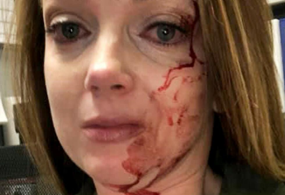 BLODIG: Samantha Clarke etter det uprovoserte angrepet. Foto: Privat / AP / NTB Scanpix