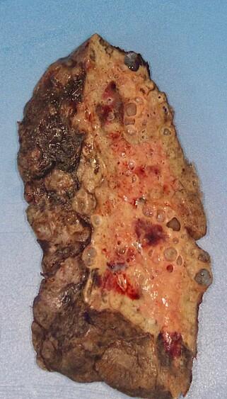ØDELAGT LUNGE: Slik så den ødelagte lungen til coronapasienten ut. Legene ble rystet da de så hvor skadet lungen var. Foto: Northwestern Medicine / AFP