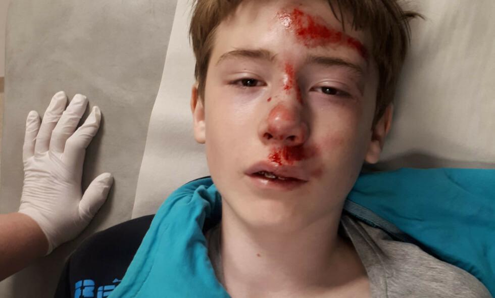 SKADD: Moren til Sander tør ikke å tenkte på hvordan det kunne gått om han ikke hadde på seg hjelm. Foto: Privat