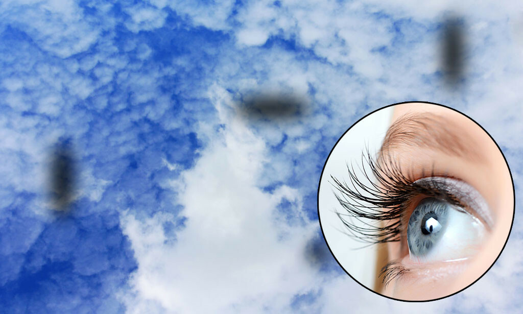 MØRKE FLEKKER; STREKER, PRIKKER MOT HIMMELEN: Et fenomen med prikker i forskjellige former som beveger på seg foran øynene dine. Foto: NTB Scanpix/Shutterstock.