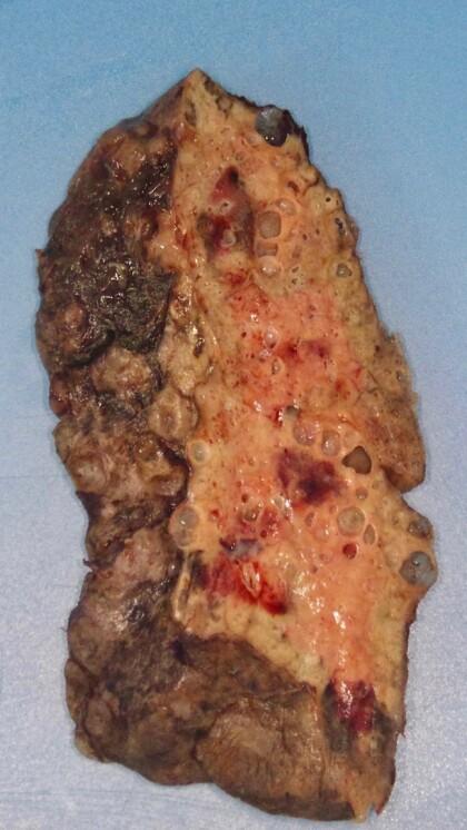 RYSTET LEGENE: Slik så den ødelagte lungen til den unge coronapasienten ut. Legene ble rystet da de så hvor skadet lungen var. Foto: Northwestern Medicine/AFP