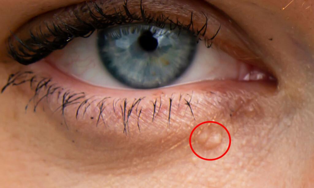 SYRINGOMER: Små og ubetydelige syringomer hos ung person. Foto: NTB Scanpix/Shutterstock