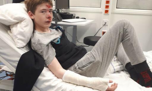MEDTATT: Hjernerystelse, knekte tenner, bukket arm og en haug med skrubbsår var det Sander satt igjen med. Foto: Privat