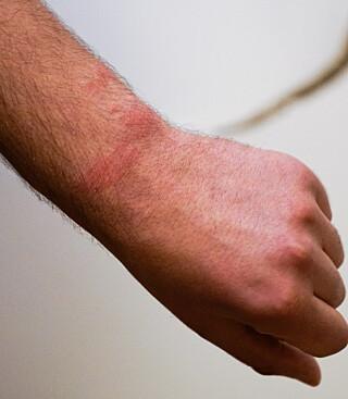 HÅNDJERN: Flere timer etter ransakingen hadde mannen kraftige, røde merker på håndleddet etter å ha blitt lagt i jern av politiet. Dette framgår også av legeattesten mannen fikk etter hendelsen. Foto: Øistein Norum Monsen/Dagbladet