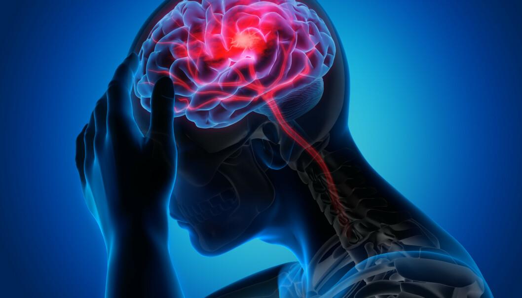 NY STUDIE: Forskere har sett på sammenhengen mellom personlighetstrekk og kognitiv svikt. FOTO: NTB Scanpix