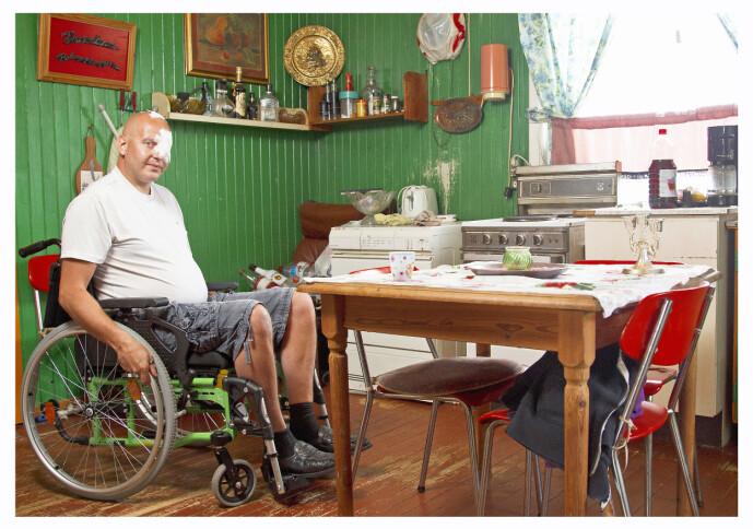 VOLDSOM SMELL: Per Steinar ble blind på et øye, etter at han ble truffet av kulelynet som sendte voldsom strøm gjennom kroppen hans. Lynnedslaget viste seg å få uante følger. Foto: Henning Jensen