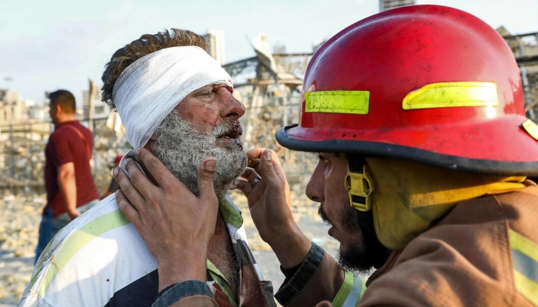 <strong>SKADD:</strong> En mann jekkes av brannmannskapene i nærheten av eksplosjonsstedet. Foto: AFP