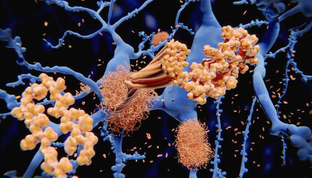 <strong>SYKDOM I HJERNEN:</strong> Ved Alzheimers sykdom skjer karakteristiske forandringer i hjernen. Det dannes såkalte senile plakk av proteinet beta-amyloid (vist i brunt) og nevrofibrillære floker av proteinet tau (vist i blått). 3D-bilde Juan Gaertner Shutterstock NTB Scanpix