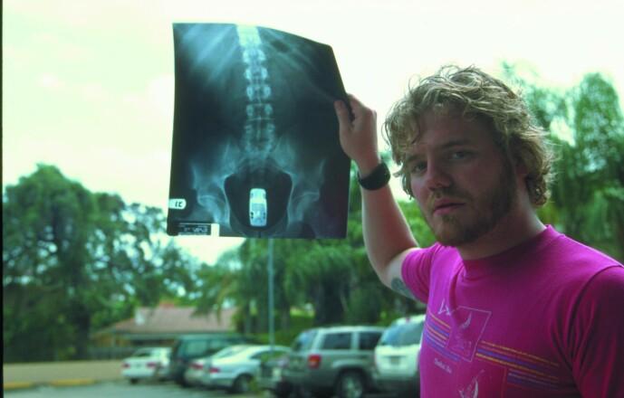 <strong>LEKEBIL:</strong> Et av Ryan Dunns mest kjente stunt var da han puttet en lekebil inn i rektum. Foto: NTB Scanpix