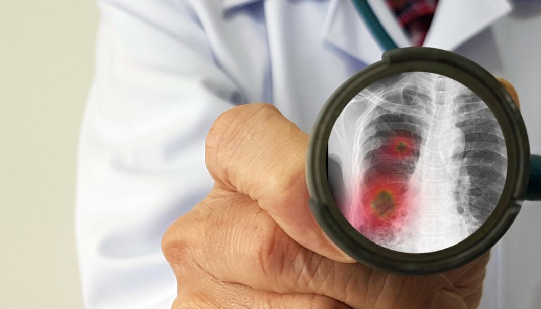 <strong>TIDLIGE SYMPTOMER:</strong> Ifølge den nye studien, er det visse tidlige symptomer som skiller coronapasientene fra influensapasientene. Illustrasjonsfoto: Shutterstock / NTB Scanpix