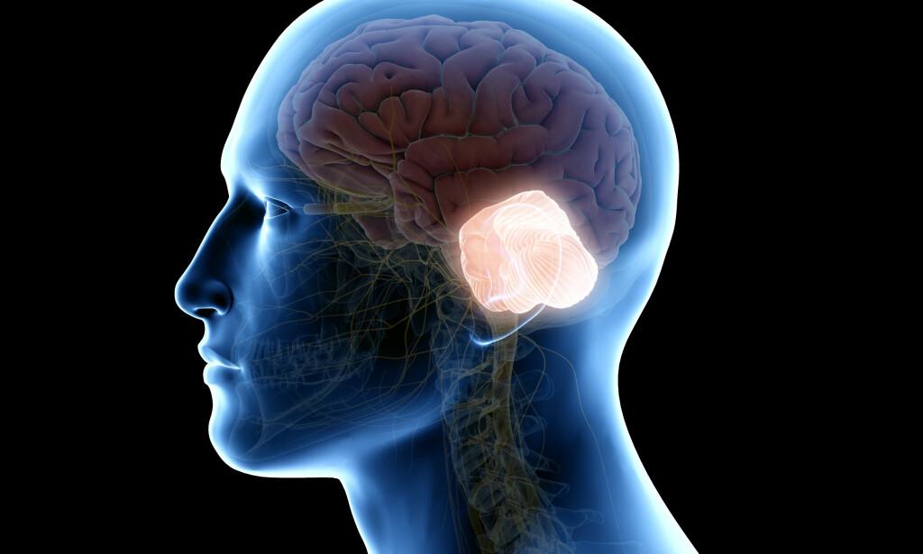 LILLEHJERNEN: Bildet illustrerer lillehjernen - som lyser, i relasjon til storehjernen og resten av hodet og nakken. Foto: NTB Scanpix/Shutterstock.