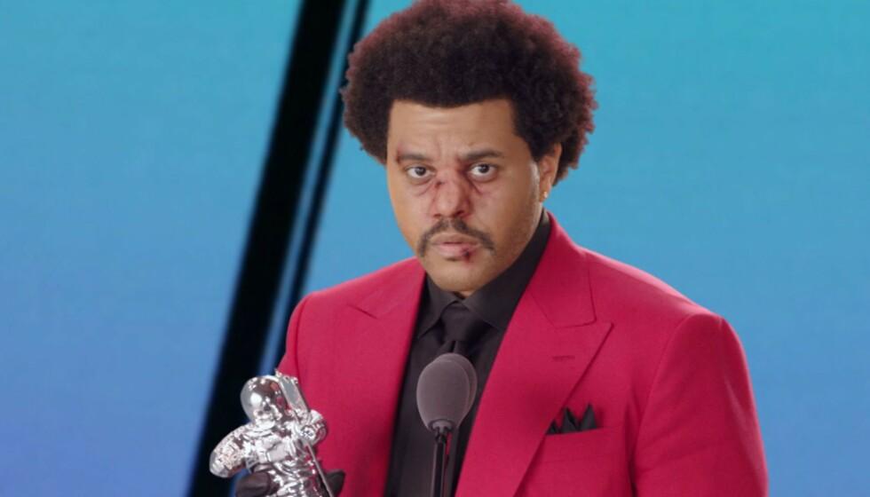 <strong>BLODIG ANSIKT:</strong> The Weeknd dukket opp med det som kunne se ut som en blodig, skeiv nese under nattens VMA-utdeling. Foto: NTB Scanpix