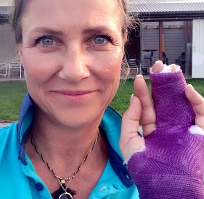 <strong>AU DA:</strong> Prinsesse Märtha Louise falt av hesten og brakk fingeren i fjor. Foto: Privat / Instagram