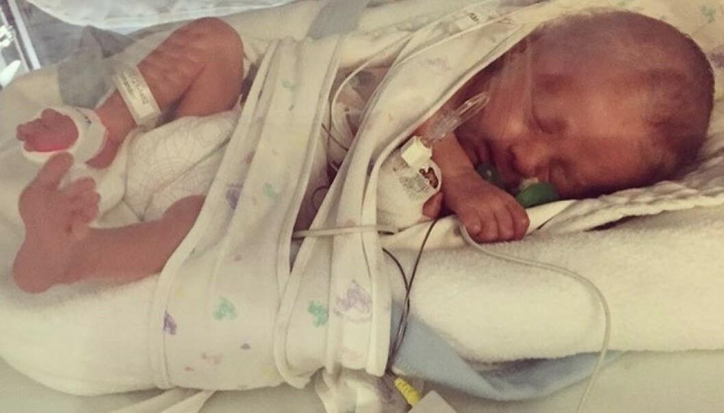 <strong>LITEN KJEMPE:</strong> Ti dager etter fødselen kom de første symptomene på at Elton var smittet av herpessvirus. FOTO: Privat