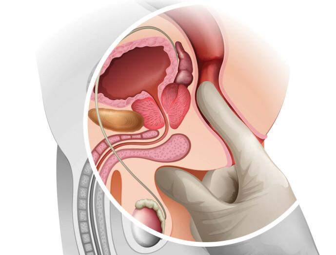 <strong>ENKELT:</strong> Her finner du prostata.