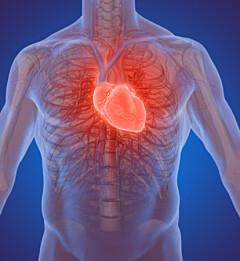 Image: Professor: Hjerteinfarkt-årsak vekker oppsikt