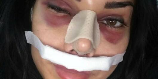 Image: Derfor ble hun tilbakeholdt på flyplassen