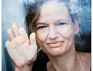 Image: Da Rikke våknet, var ni av fingrene hennes borte